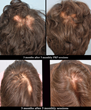 Toronto Facial Cosmetic Surgery Center Announces Innovative Hair Loss...