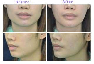 Botox Jaw Reduction Thailand - Yoskarn Clinic - plastic ...