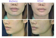 botox-jaw-reduction-nyc