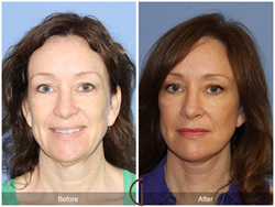 Lower Facelift and Neck Lift by Orange County Facial Plastic Surgeon, Dr. Kevin Sadati Newport Beach Lower Facelift Mini Lift liquid facelift Blepharoplasty eyelid lift