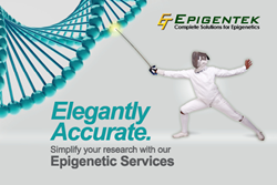 Epigenetic services for researchers available from Epigentek including ChIP-Seq, Methyl-Seq 5-mC analysis, RNA-Seq, Bioinformatics, and Drug Discovery.