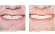 SmileCareClub Before & After