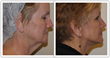 The Canoun Face Lift from Dr. K Cary Canoun Still Sees Results Years Later