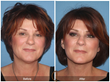 The Natural Facelift
