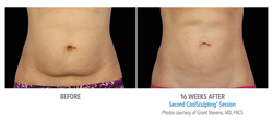 coolsculpting nj