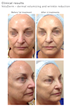 Recent clinical study proves VoluDerm micro-needle RF technology by...