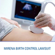 Mirena Lawsuit Filed By Southern Med Law Seeks Compensation For...
