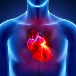 Testosterone Lawsuit Heart Attack