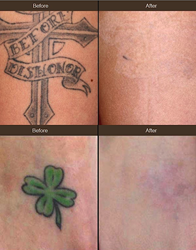 PicoSure laser tattoo removal results: cross erased in 4 treatments, clover gone with 3 treatments.