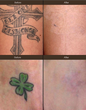 Tattoo Removal With New Laser Upgrade Comes To Beverly Hills, Erases All Ink Colors