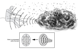 "Supersonic sound waves produced by explosions can result in brain injury, as explained in the book, ""Coping with Concussion and Mild Traumatic Brain Injury""."