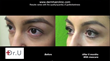 Plastic and Reconstructive Surgery Global Open Journal Publishes Dr. Umar's Study on Using Leg Hair For Eyebrow Transplantation