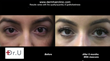 longer, natural looking eyelashes - before and after transplantation with leg hair follicles