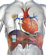 Dualis MedTech and ReliantHeart Partner on Fully Implantable TET...