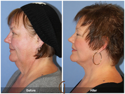 Lower Face & Neck Lift with Neck Liposuction Facelift Mini Facelift Revision Facelift Orange County Newport Beach Facial Plastic Surgeon Cosmetic Surgery Before and After Photos Post surgical pre surgical
