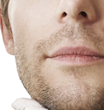 Beard to Scalp Hair Transplant: Newest Advance in Hair Transplant Technology