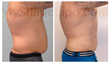 male liposuction, liposuction for men, myshape lipo, trevor Schmidt PA-C, my shape lipo