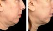 thermage tighten loose skin