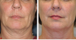 thermage before and after womens face