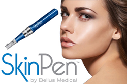 SkinPen is now available at Ethos Spa