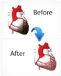 External Counterpulsation (EECP/ECP) a New Heart Disease Therapy Helps People of Calgary with Unstable Angina