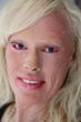 Bailey Pretak, affected with autosomal recessive congenital ichthyosis (ARCI), also known as lamellar ichthyosis (LI)