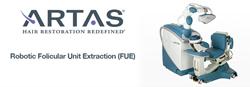 ARTAS Robotic Hair Transplantation