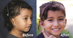 Child had bi-lateral Microtia and underwent surgery to have ears reconstructed