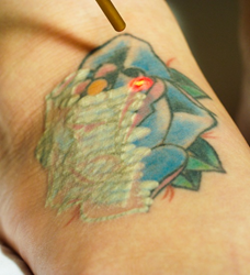 Astanza Trinity laser tattoo removal frederick maryland