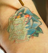 The Cosmetic and Skin Surgery Center Advances Their Tattoo Removal Technology to the Astanza Trinity