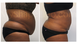 tummy tuck, liposuction, large volume liposuction, myshape lipo