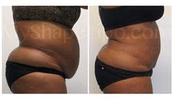 tummy tuck, liposuction, large volume liposuction, myshape lipo