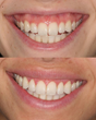 A Lip Repositioning Procedure Brought The Lip Down To Minimize Gum Exposure