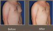 Orange County Gynecomastia Surgeon Is Now Using Specialized Techniques with Uni-lateral Gynecomastia to Acheive Superior Results, Announces Cruise Plastic Surgery