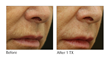 Viora Introduces ReFine, a New Treatment Protocol for Perioral Lines
