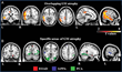 RSNA: Imaging Test May Identify Biomarker of Alzheimer's Disease