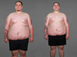 """Extreme Weight Loss"": Robert and Raymond's Journey Begins at the..."