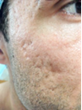 "Dr. A David Rahimi Authors ""Acne and Acne Scarring Treatments – A..."