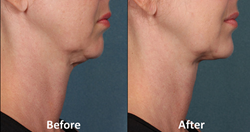 Kybella, Double Chin Fat Removal, Kythera, Dermatologist, Stamford, Neck Fat Injection,