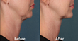 "Connecticut Skin Institute First in Connecticut to Offer New Surgery-Free ""Double Chin"" Fat Reduction Treatment"