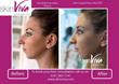 Non-Surgical Rhinoplasty Photos