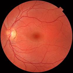Retina Human Eye