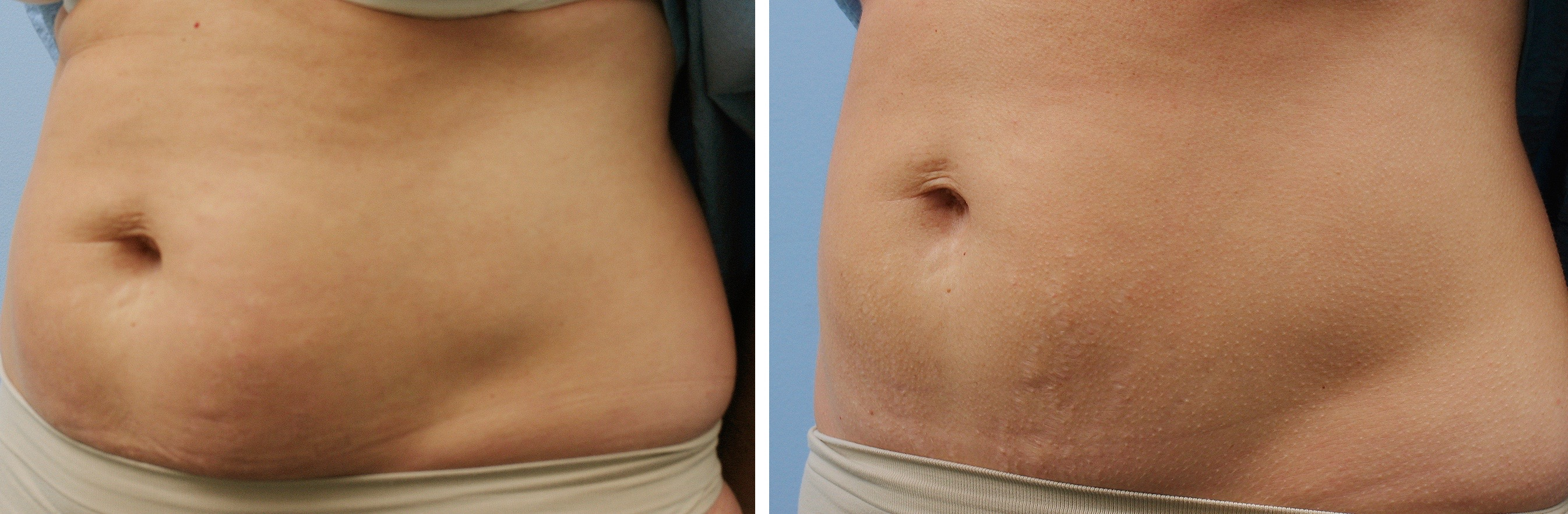 Thermage for Loose Skin and Body Shaping and Exilis Non ...