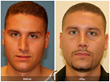 Orange County Cosmetic Surgeon Shares that the Number of Men Seeking...