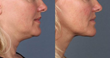 Naficy Rejuvenation Center Offers New FDA Approved Injection for Double Chin Reduction