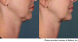 Dr. Purvisha Patel Showing Non-Surgical Treatment For A Double Chin on...