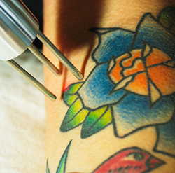 Trinity Laser Tattoo Removal in Ann Arbor, Michigan