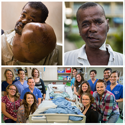 Sambany received a free operation to remove a 16 pound facial tumor onboard Mercy Ships.  17 crew volunteered to donate their blood for his surgery.