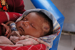 Nepalese infant after receiving first aid.