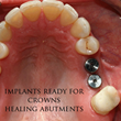 Study on Quality of Life after Dental Implants Highlights the Benefits...
